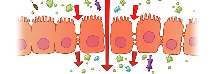 Leaky Gut Syndrome, probiotics