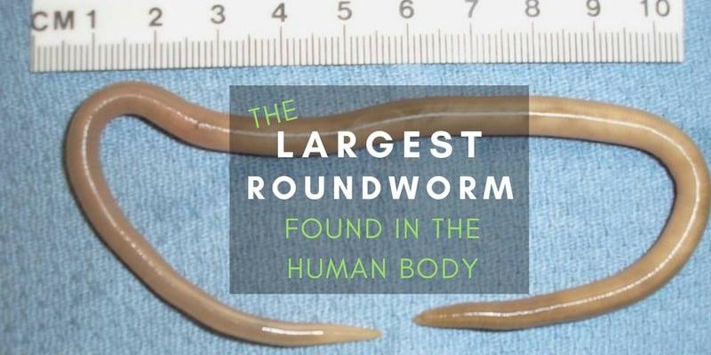Human parasite worms - ASCARIS