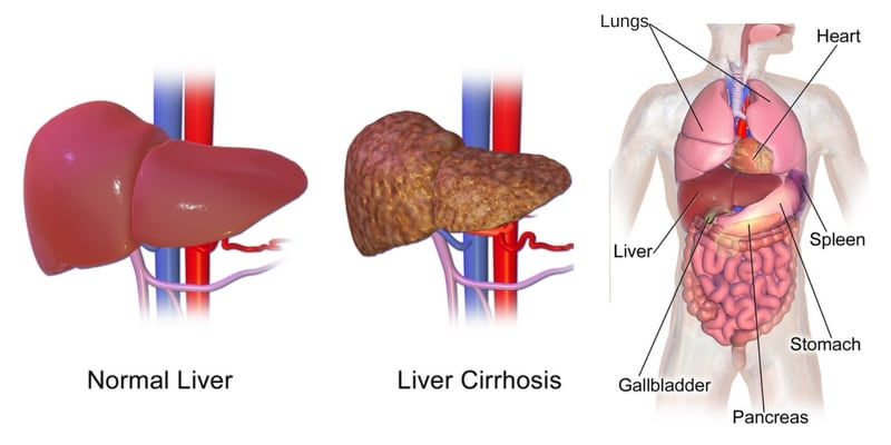 Liver Cleanse in 4 Easy Steps