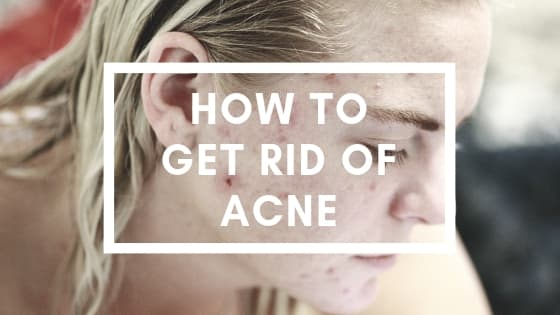 how to get rid of acne - woman with pimples on her face